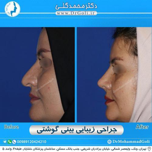 جراحی بینی گوشتی 38