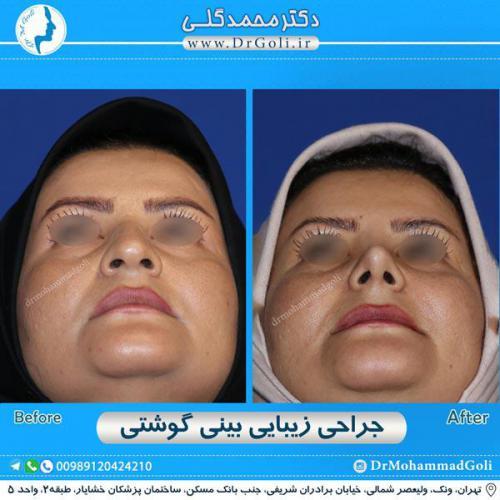 جراحی بینی گوشتی 39