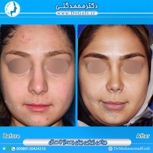 جراحی بینی گوشتی 4
