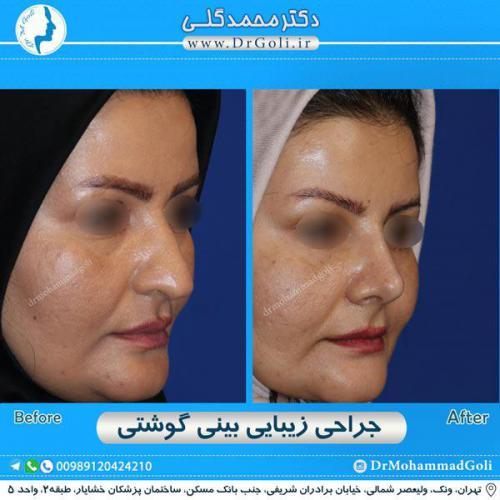 جراحی بینی گوشتی 40