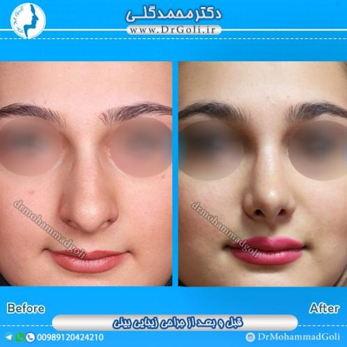 جراحی بینی گوشتی 5