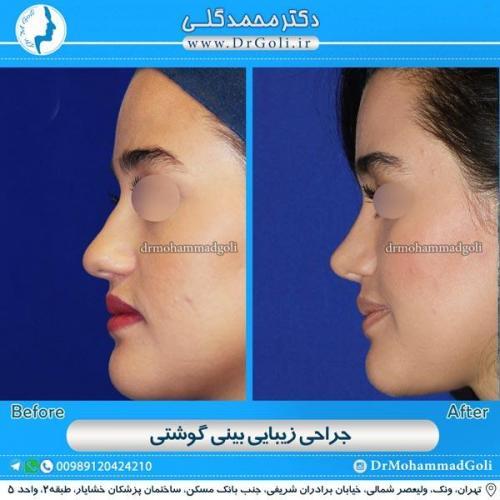 جراحی بینی گوشتی 6