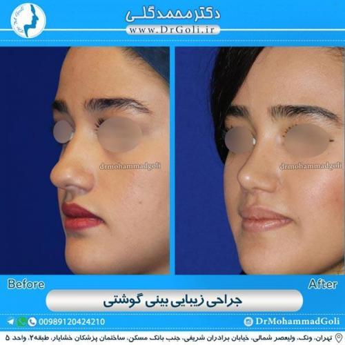 جراحی بینی گوشتی 7