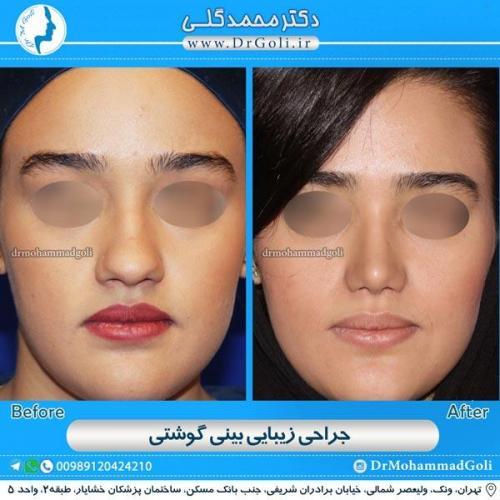 جراحی بینی گوشتی 8