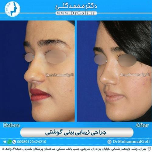 جراحی بینی گوشتی 9