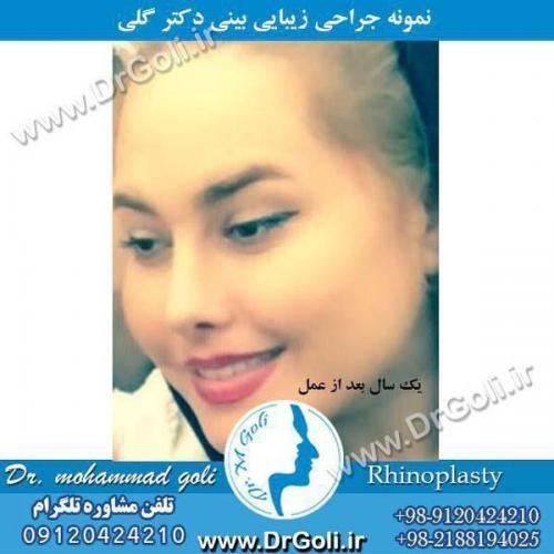جراحی بینی 061