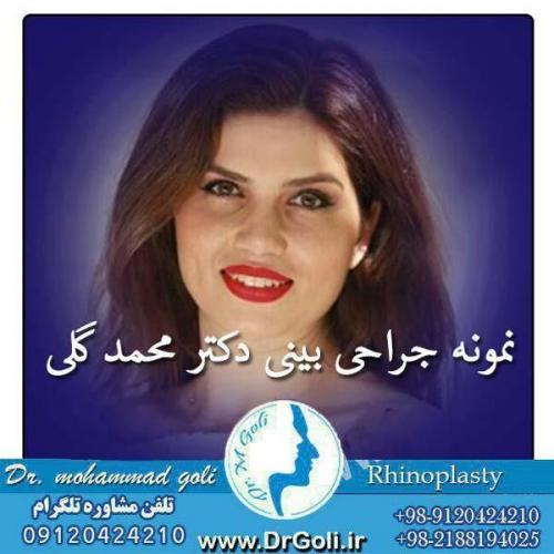 جراحی بینی 063
