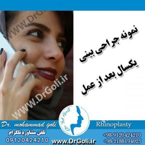 جراحی بینی 076