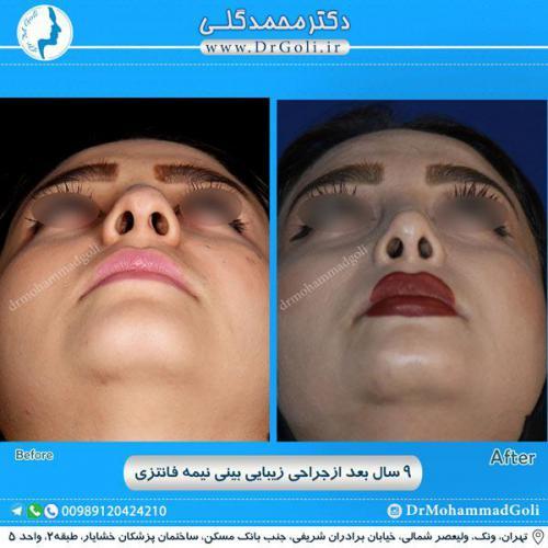 جراحی بینی نیمه فانتزی 30