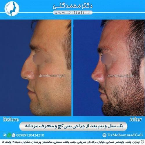 جراحی بینی کج و منحرف 1