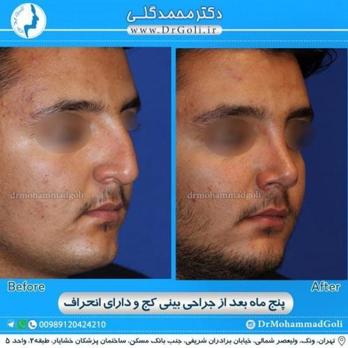 جراحی بینی کج و منحرف 10