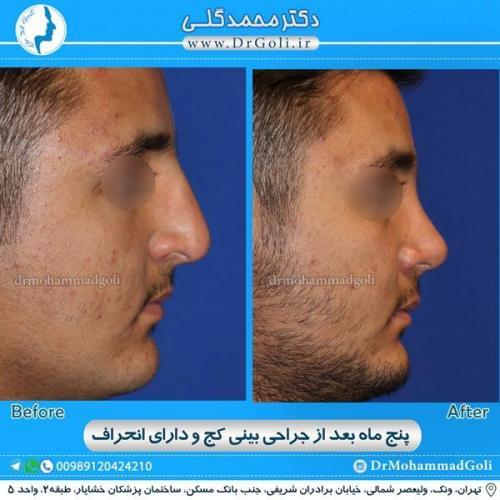 جراحی بینی کج و منحرف 11