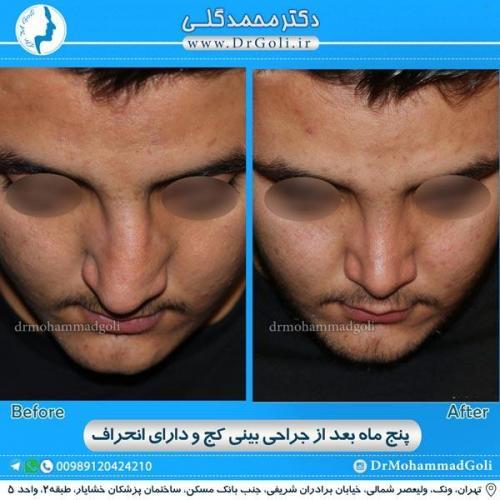 جراحی بینی کج و منحرف 12