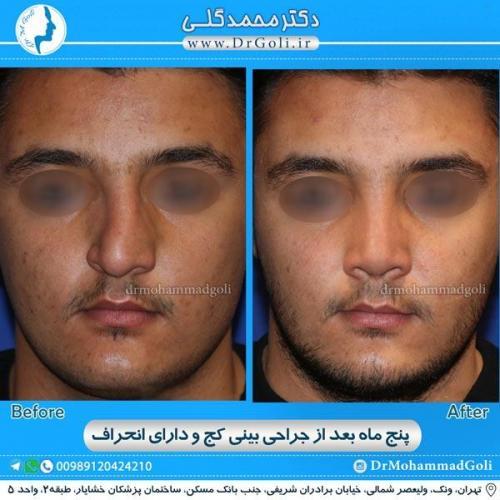 جراحی بینی کج و منحرف 13