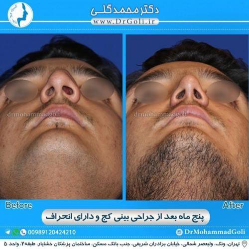 جراحی بینی کج و منحرف 14