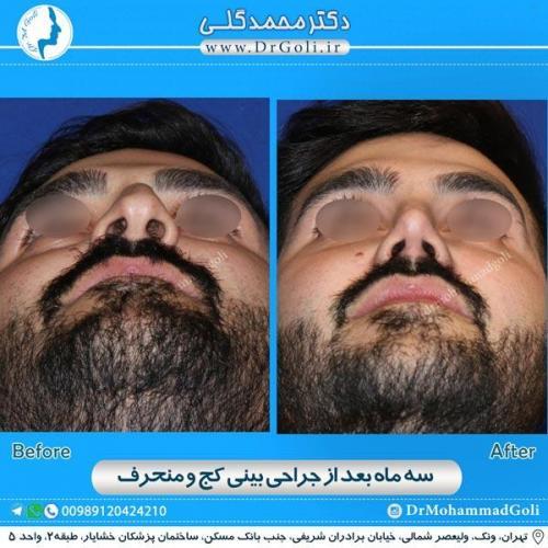 جراحی بینی کج و منحرف 16