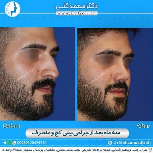 جراحی بینی کج و منحرف 19