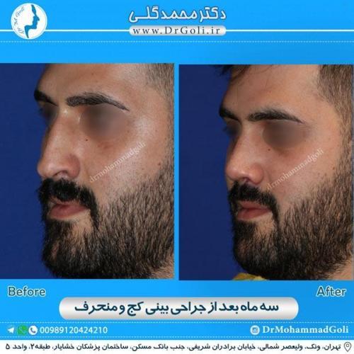جراحی بینی کج و منحرف 21