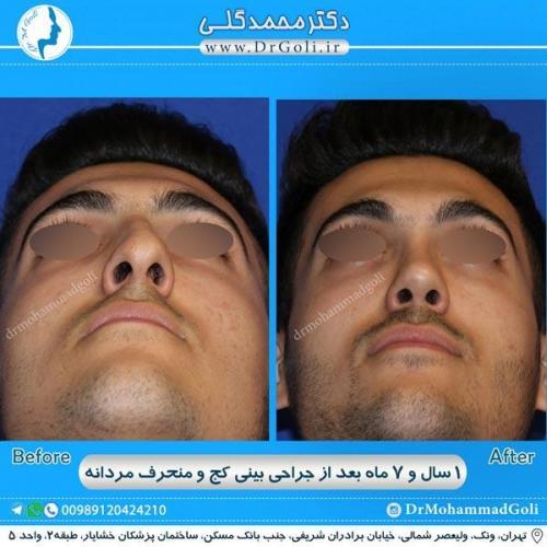 جراحی بینی کج و منحرف 29