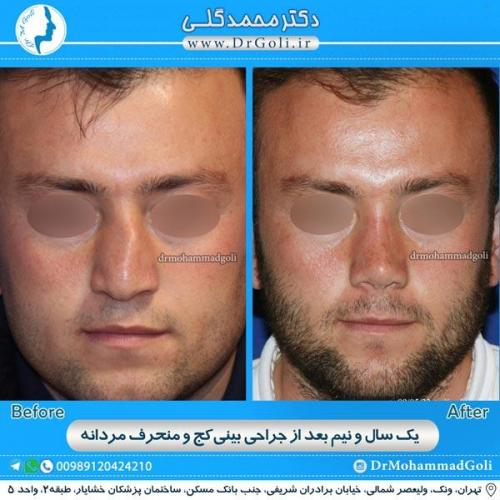 جراحی بینی کج و منحرف 3