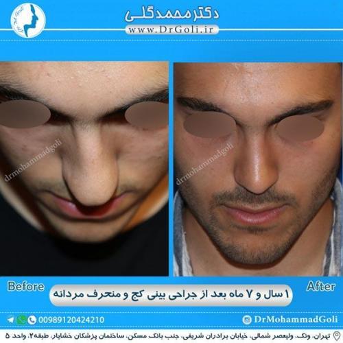 جراحی بینی کج و منحرف 30