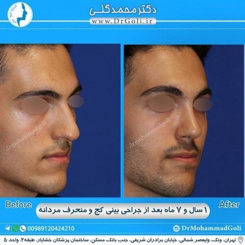 جراحی بینی کج و منحرف 31