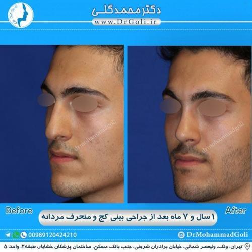 جراحی بینی کج و منحرف 32