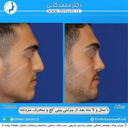 جراحی بینی کج و منحرف 33