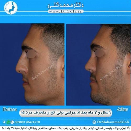 جراحی بینی کج و منحرف 34