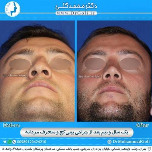 جراحی بینی کج و منحرف 4