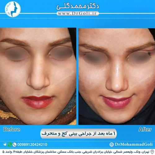 جراحی بینی کج و منحرف 40