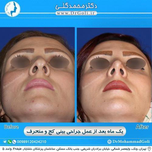 جراحی بینی کج و منحرف 41