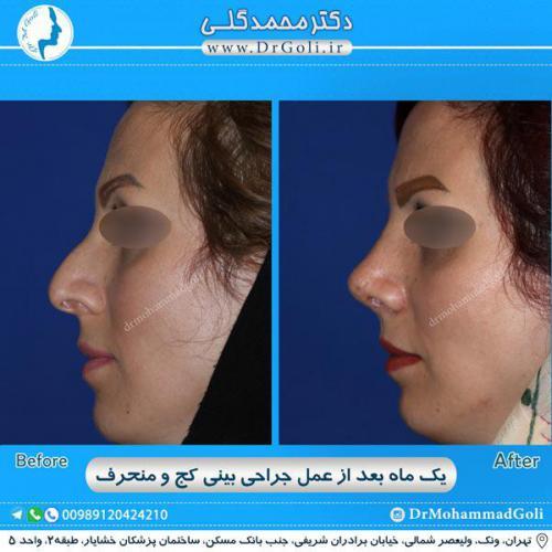 جراحی بینی کج و منحرف 43