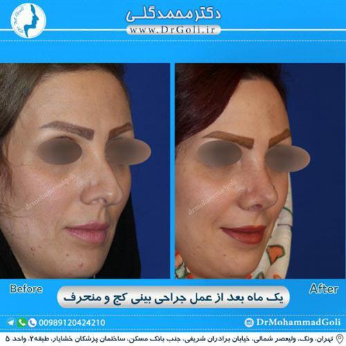 جراحی بینی کج و منحرف 47