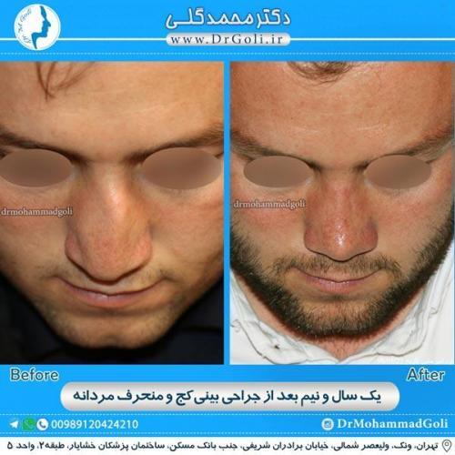 جراحی بینی کج و منحرف 5