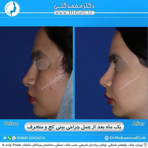 جراحی بینی کج و منحرف 50