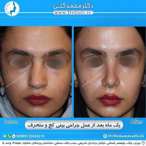 جراحی بینی کج و منحرف 52