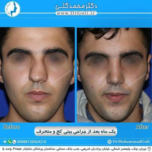 جراحی بینی کج و منحرف 55