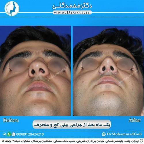 جراحی بینی کج و منحرف 56
