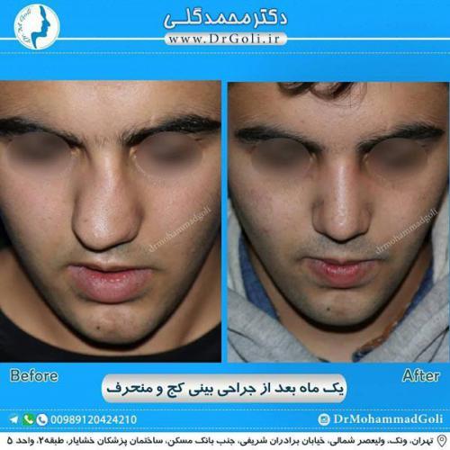 جراحی بینی کج و منحرف 57