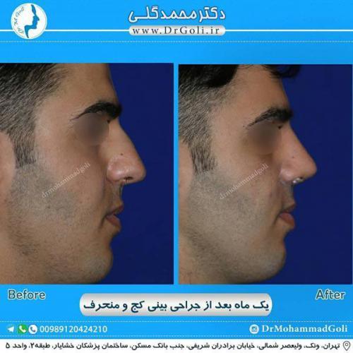 جراحی بینی کج و منحرف 58
