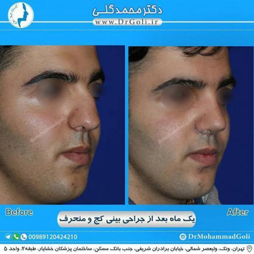 جراحی بینی کج و منحرف 59