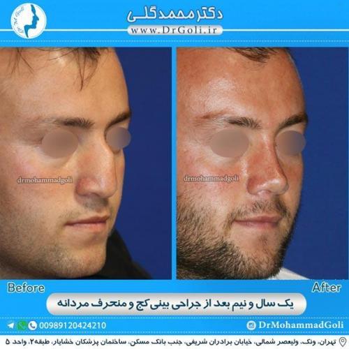 جراحی بینی کج و منحرف 6