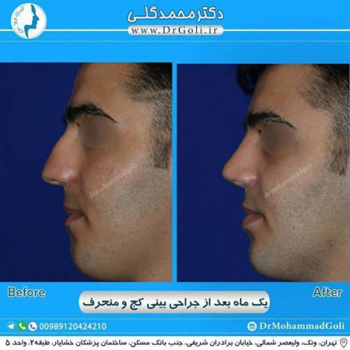 جراحی بینی کج و منحرف 60