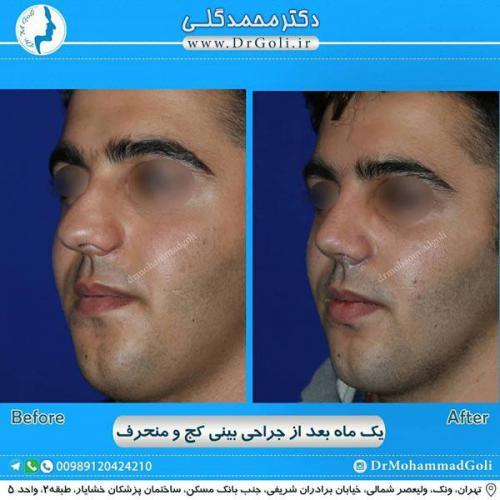 جراحی بینی کج و منحرف 61