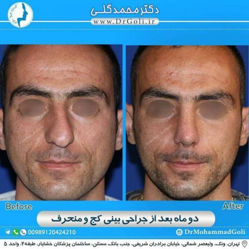 جراحی بینی کج و منحرف 62