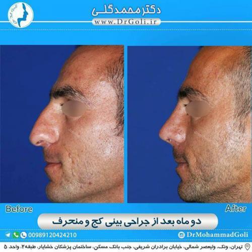 جراحی بینی کج و منحرف 65