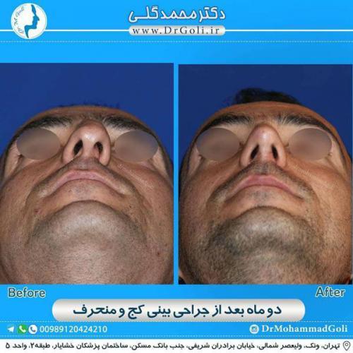 جراحی بینی کج و منحرف 66