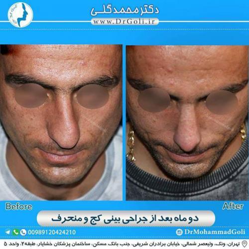 جراحی بینی کج و منحرف 67