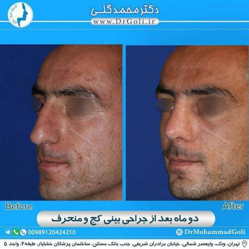 جراحی بینی کج و منحرف 68